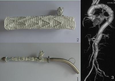 血管缝合原理图解